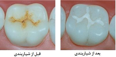 شیار بند دندان