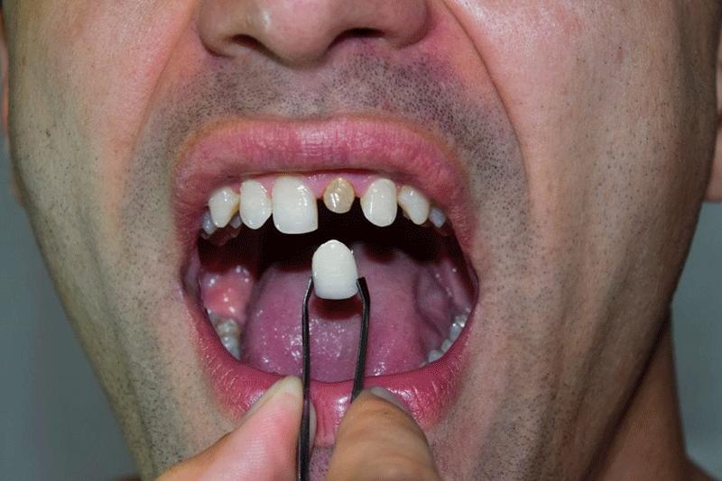 روکش دندان شکسته