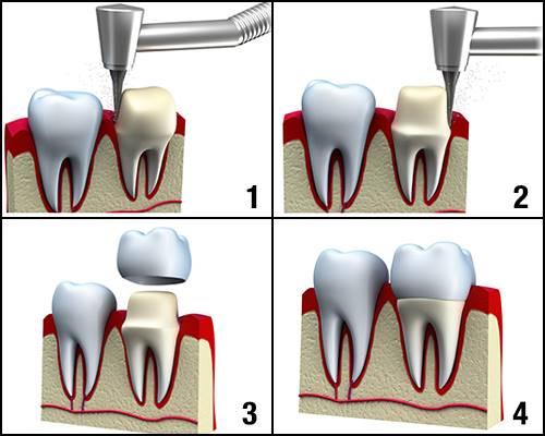 مراحل روکش کردن دندان