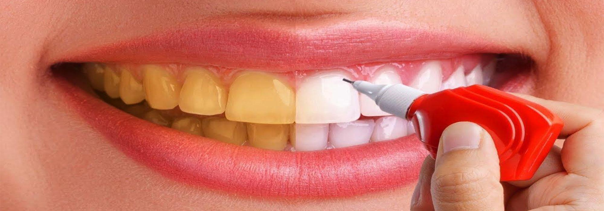 سفید کردن دندان با بلیچینگ