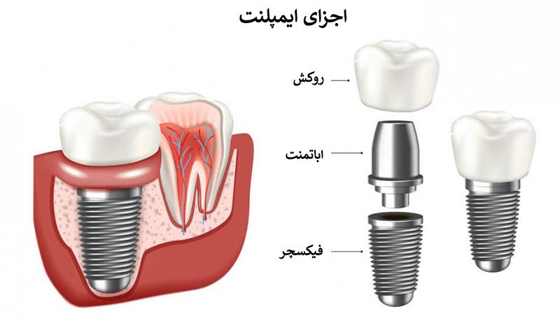 اجزای ایمپلنت دندان