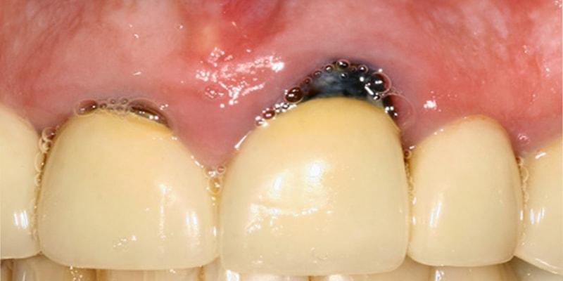 پوسیدگی در زیر روکش دندان
