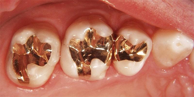 روکش طلا در پر کردن دندان