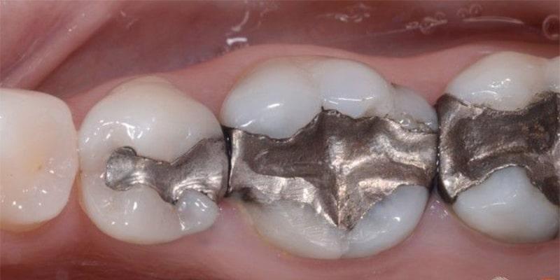 آمالگام یکی از مواد پرکردن دندان