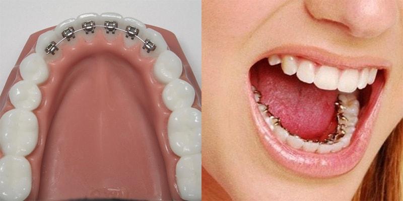 براکت پشت دندانی