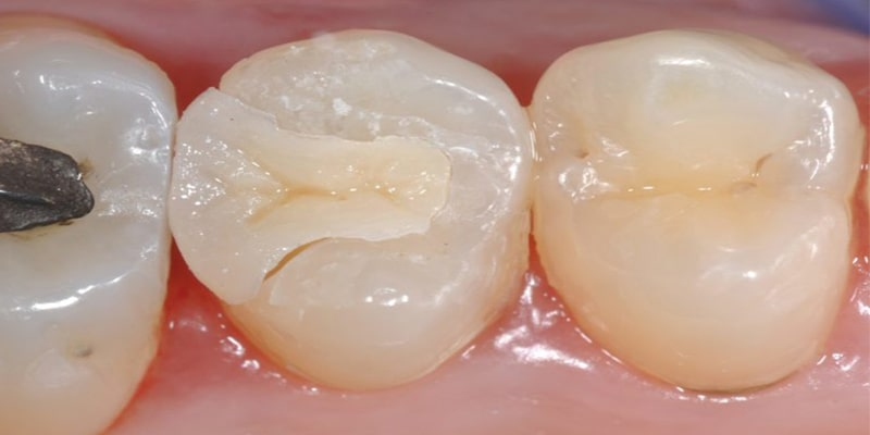 کامپوزیت یکی دیگر از مواد پر کردن دندان