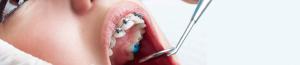 بریس ارتودنسی دندان