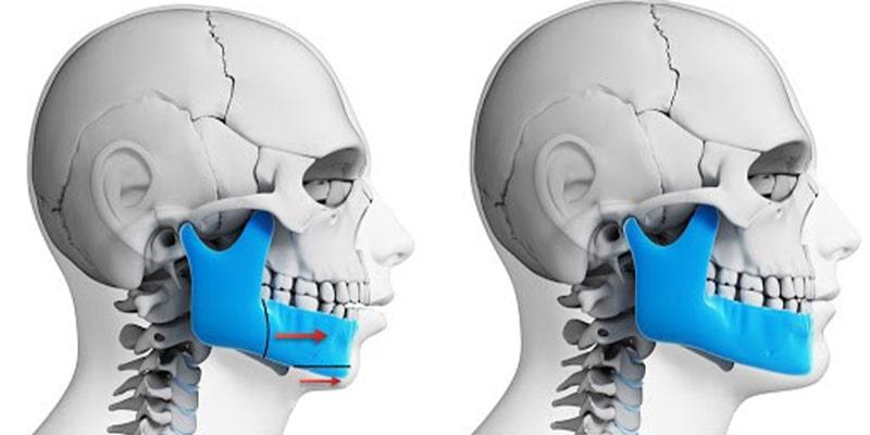 عمل جراحی فک پایین همراه با عمل جراحی چانه