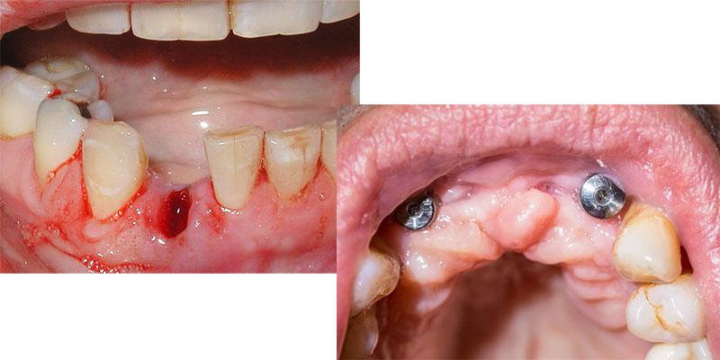 انواع ورم و التهاب لثه بعد از کشیدن و ایمپلنت دندان