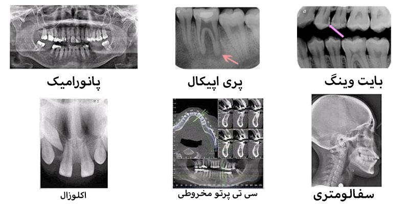 انواع عکس رادیولوژی دهان