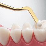 برندهای کامپوزیت دندان