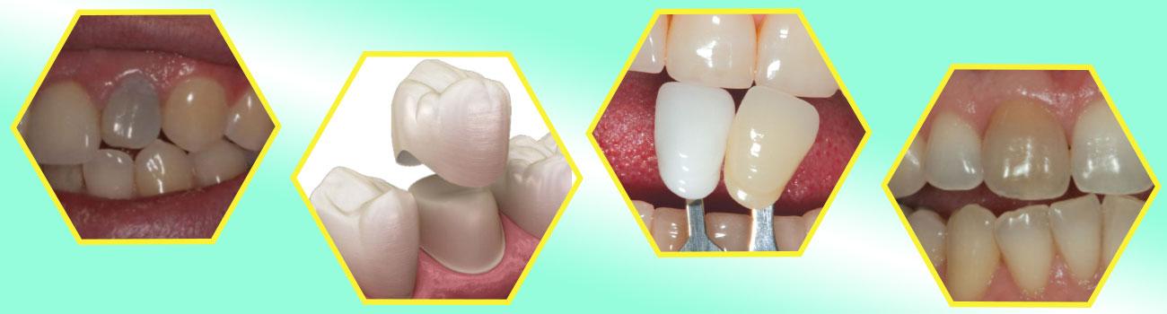 تغییر رنگ روکش دندان