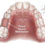 فضا نگهدار دندان برای کودکان